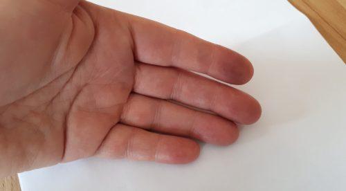 CRPS-Hand
